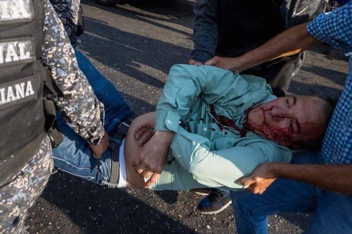 Jefe de seguridad de Henri Falcón fue herido en Catia
