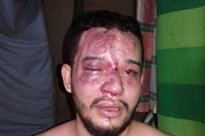 Preso político Gregory Sanabria detenido en el Sebin requiere una intervención quirúrgica