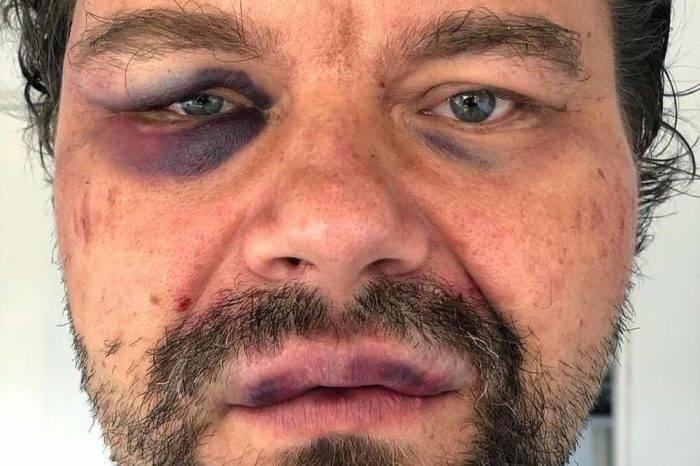 Denuncian que las FAES golpearon a periodista polaco Tomasz Surdel