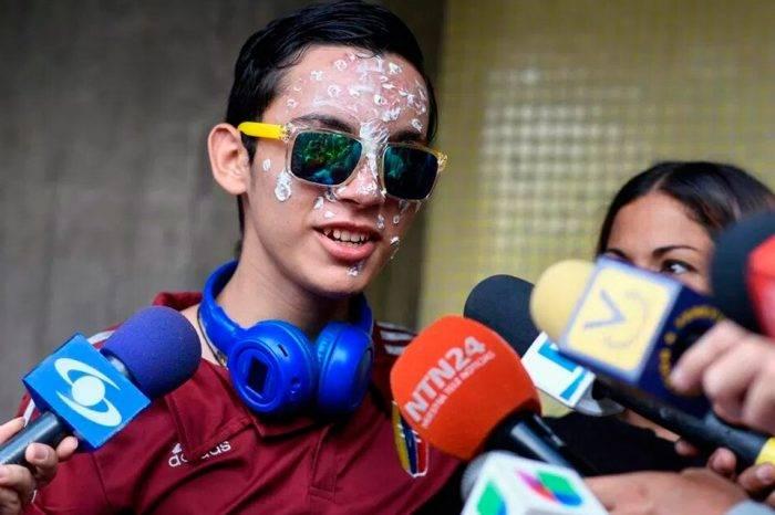 """""""La operación fue perfecta"""", Rufo Chacón ya cuenta con sus prótesis oculares"""