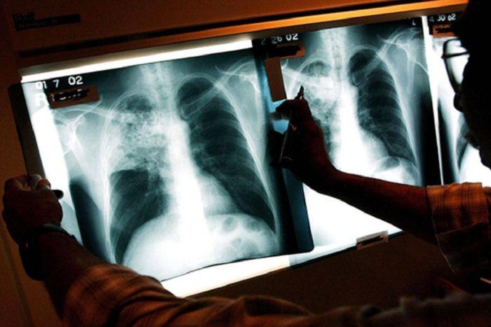 Aumentan a 11 los casos de Tuberculosis en Vargas
