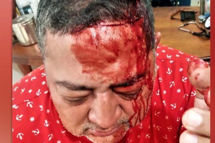 Harold Maldonado Primero Justicia guerrilla FBL Barinas